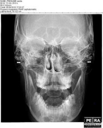 Radiografii pentru rinoplastie si deviatie de sept de la Petra Laboratory - Centrul De Radiologie Digitala Stomatolog