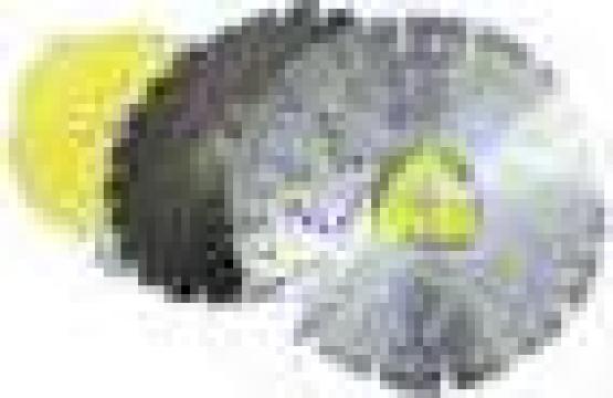 Discuri de debitat diamantate Klingspor de la Electrofrane