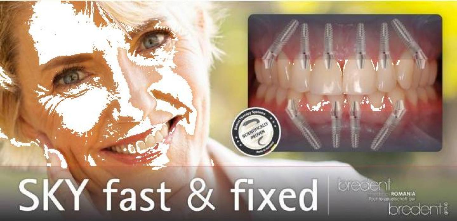 Implant dentar Bredent Fast and Fixed